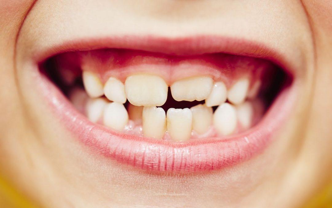 Porqué se produce el apiñamiento dental y como evitarlo