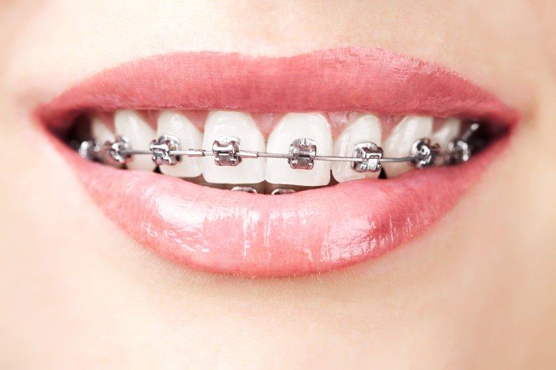 ortodoncia fija barcelona