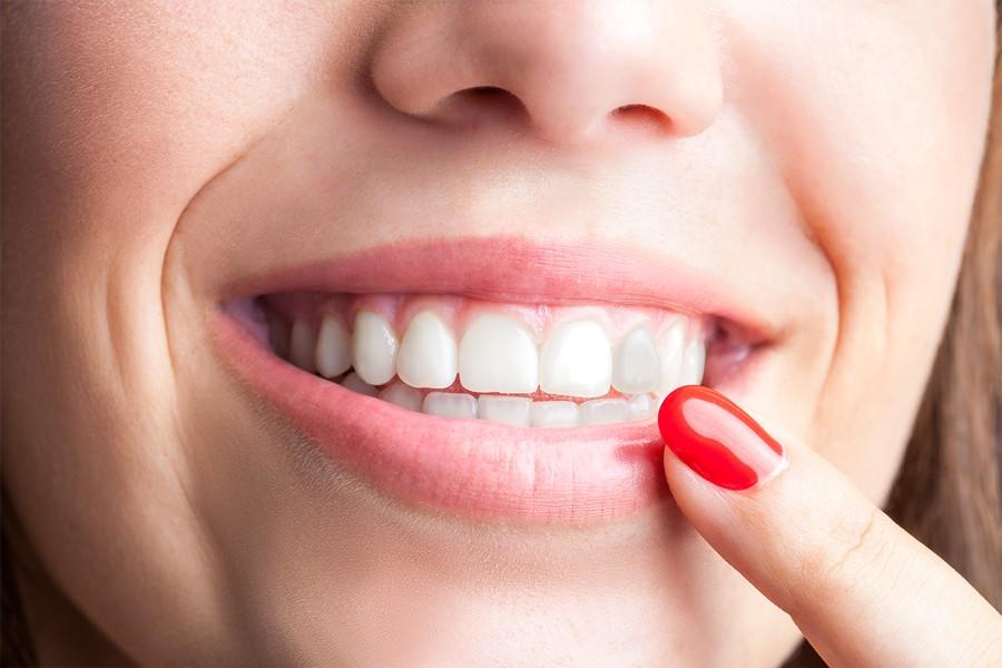 Diente gris: Causas y tratamiento - Axioma Estudi Dental