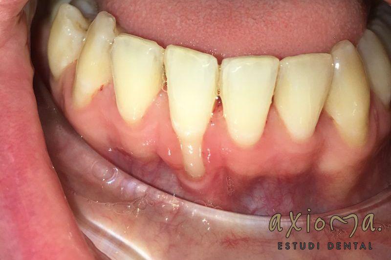 Encías Retraídas A Que Se Debe Axioma Estudi Dental