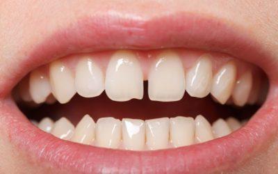 Tratamiento para solucionar los dientes separados (diastema)