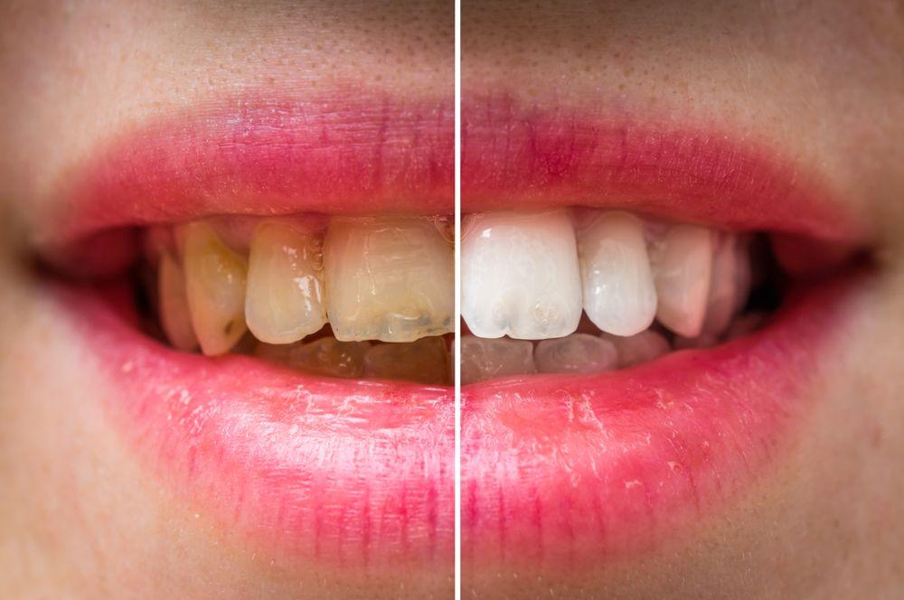 Mis dientes están amarillos ¿Cómo los blanqueo?