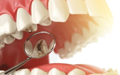 ¿En qué consiste una obturación dental?