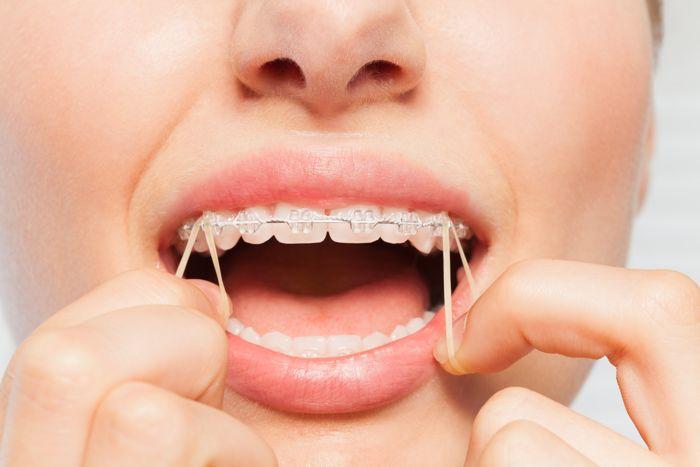 Por Qué Se Utilizan Las Gomas En Ortodoncia Axioma Estudi Dental