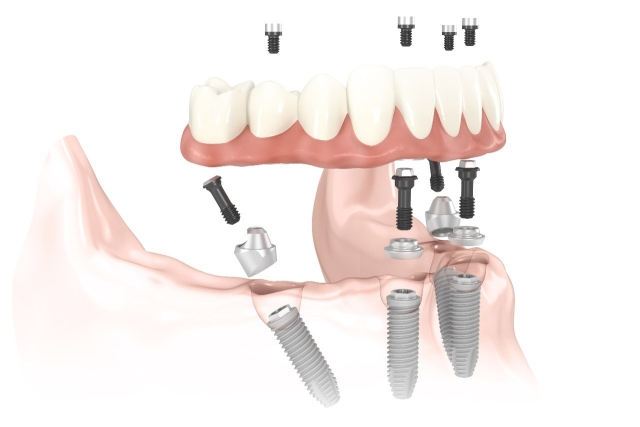 implantes dentales all on 4 barcelona