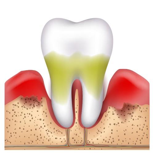 periodontitis avançada