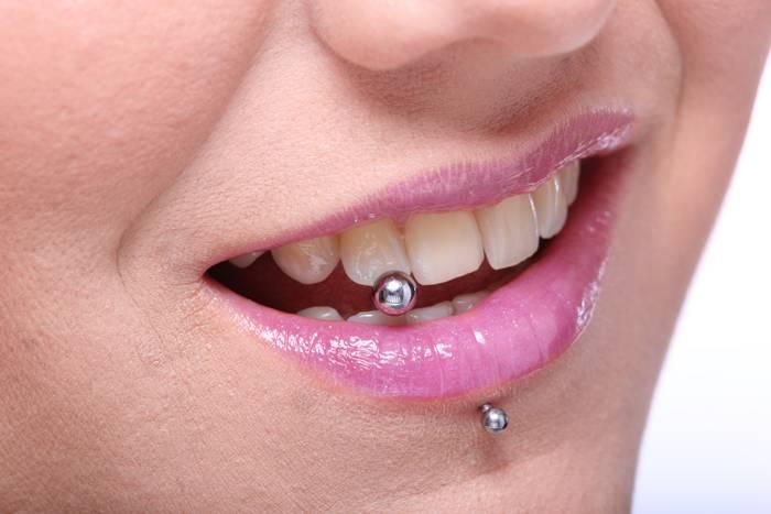 ¿Cuándo hay que retirar un piercing de la boca?