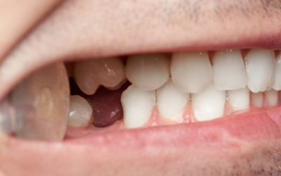 Los peligros de la falta de hueso dental