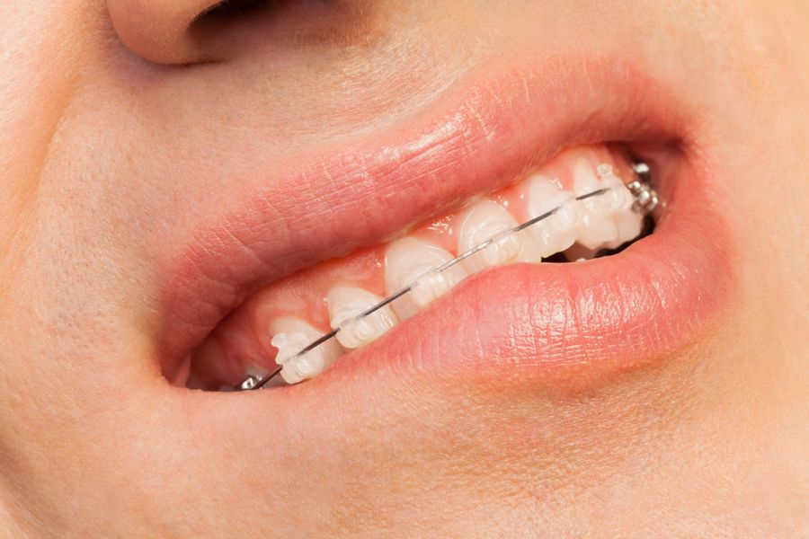 Cera de ortodoncia: Usos y ventajas