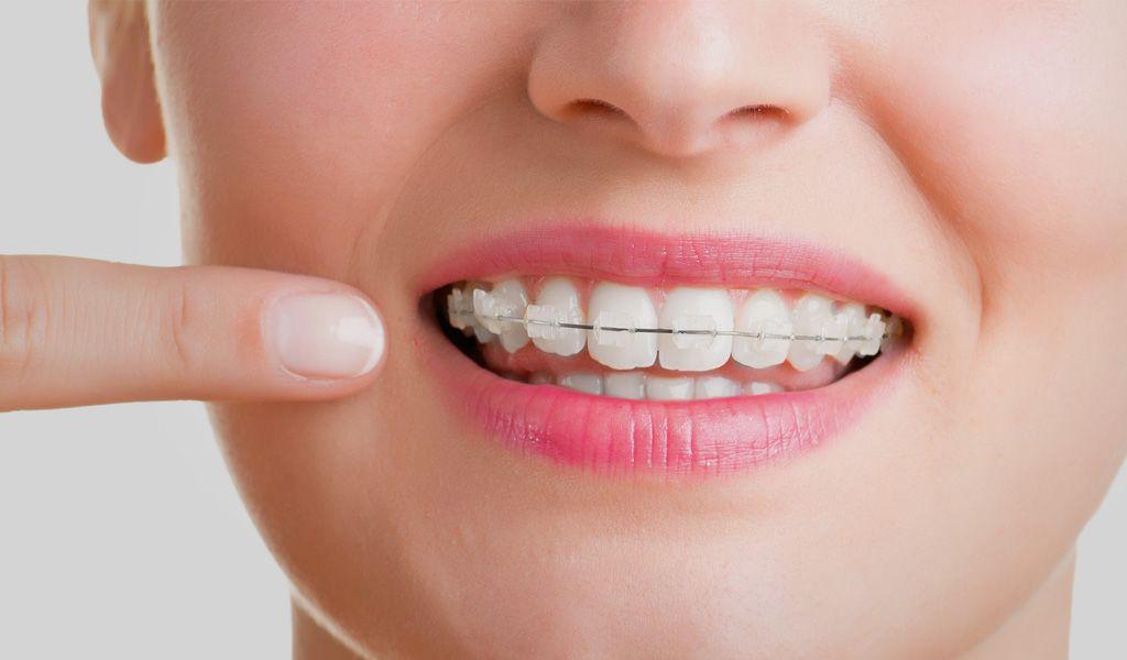 ¿Cómo usar la cera de ortodoncia?