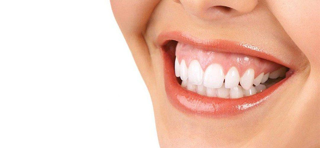 Sonrisa gingival: Todas las soluciones