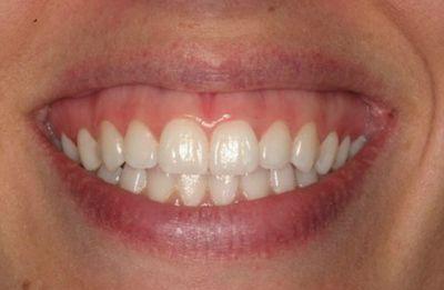 Tipos de sonrisa gingival