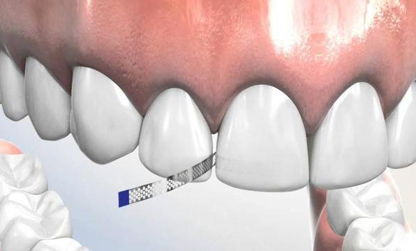¿Cuándo hacer stripping en ortodoncia?
