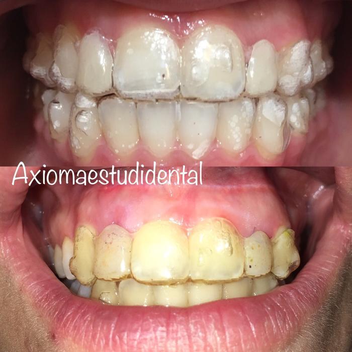 Limpieza ortodoncia Invisalign