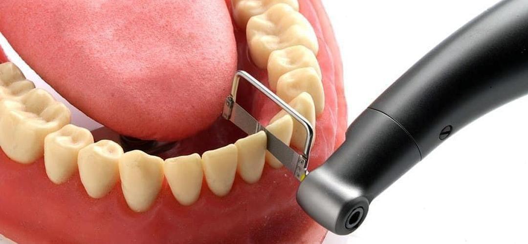 ¿Qué es el stripping dental en ortodoncia?
