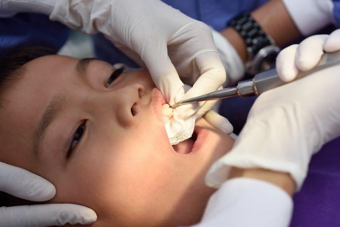 ¿Qué hacer antes de sacar un diente?