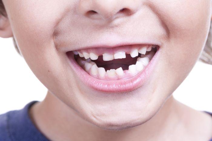 Consecuencias de la agenesia dental