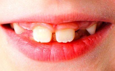 Qué es agenesia dental y cómo tratarla