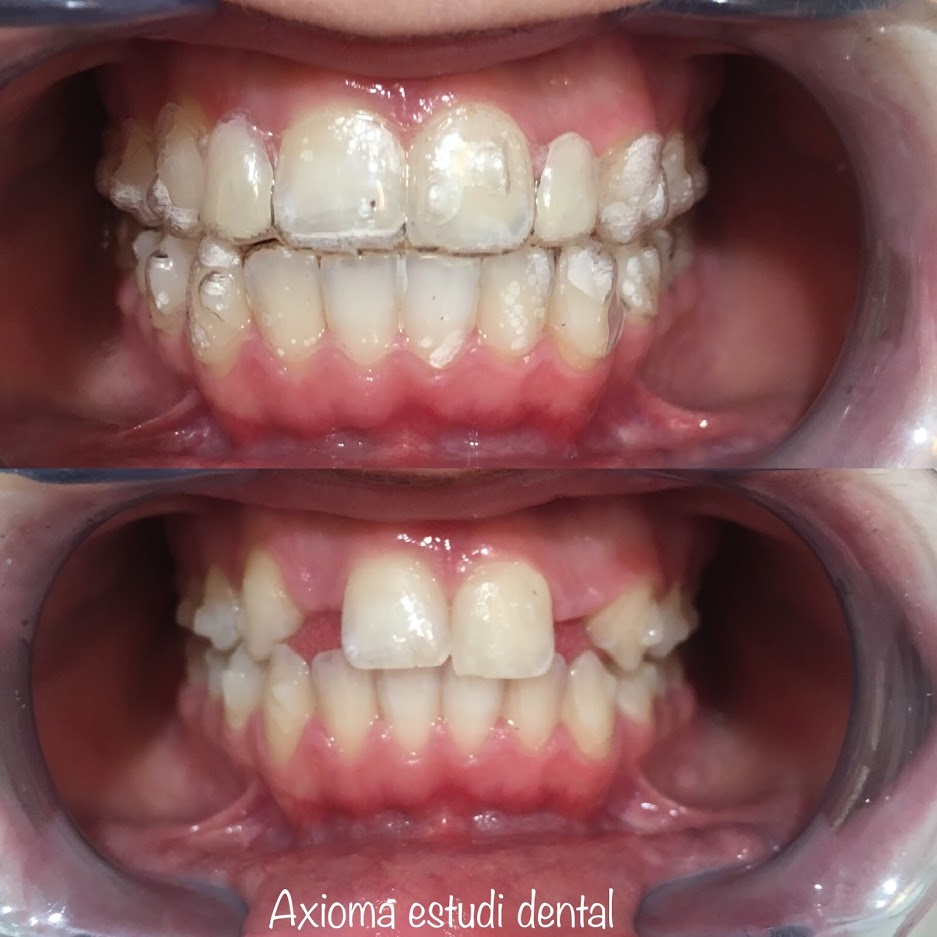 Tipos de agenesia dental
