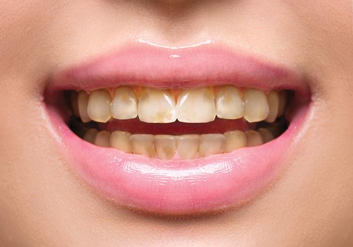 Daño esmalte dental bulimia