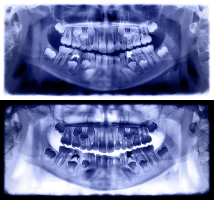 implante dental agenesia dental