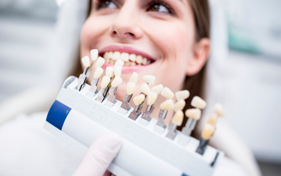 Carillas dentales… ¡Y a lucir una sonrisa radiante!